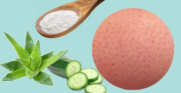 Remedies For Strawberry Legs
