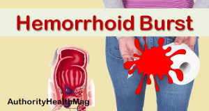 Hemorrhoid Burst