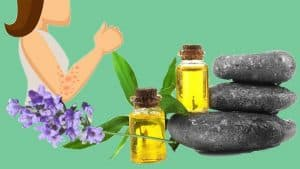 Hive Remedies With Essential Oil