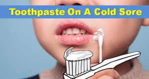 Toothpaste On A Cold Sore