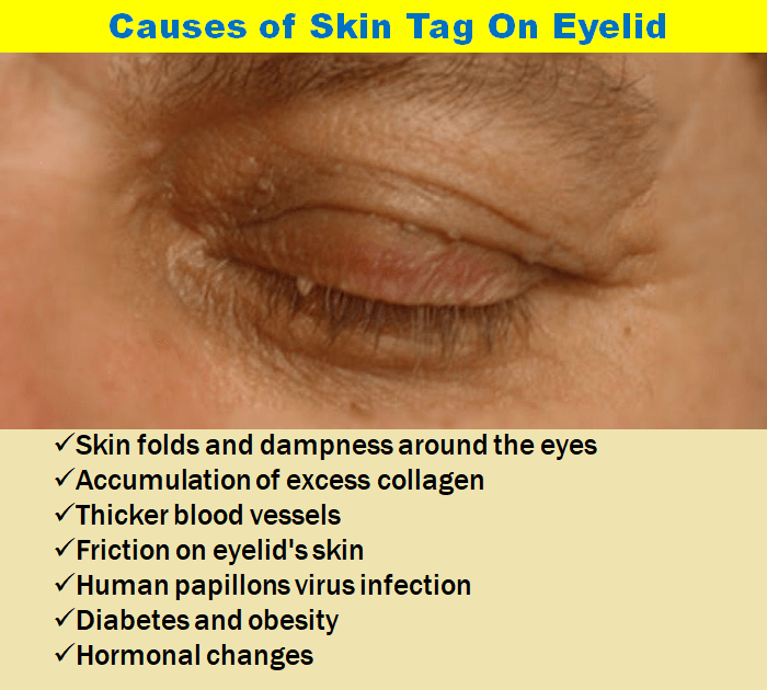 Causes Of Skin Tag On Eyelid