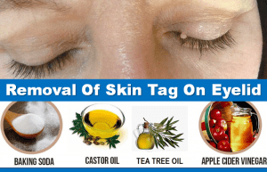 Removal Of Skin Tag On Eyelid