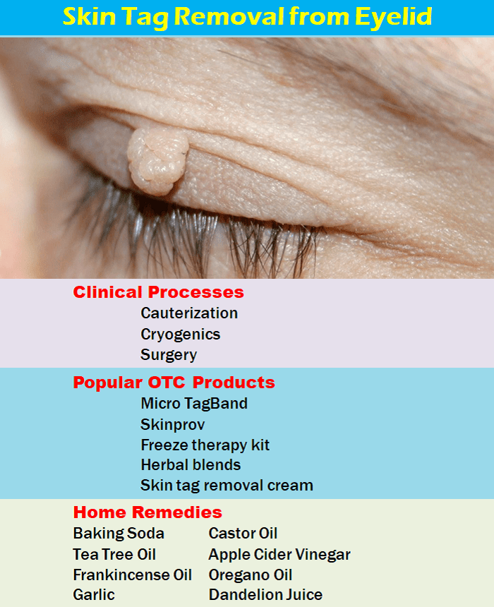 Skin Tag On Eyelid Removal