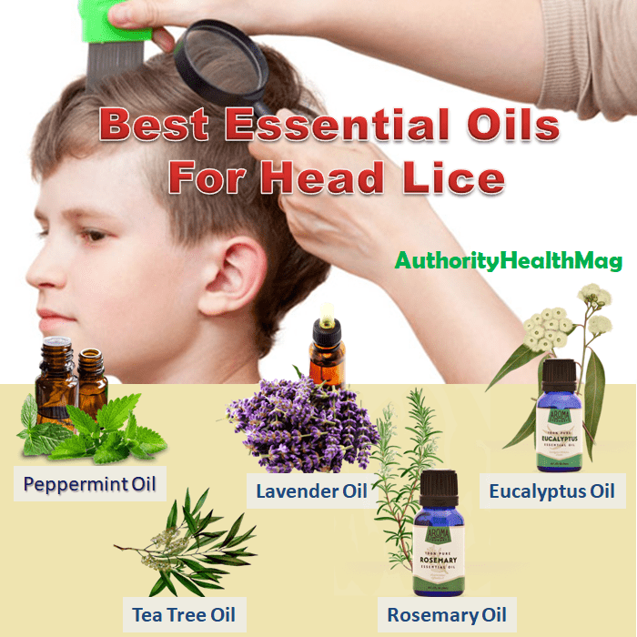 Best Essential Oils For Head Lice And Nits