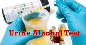 urine alcohol test