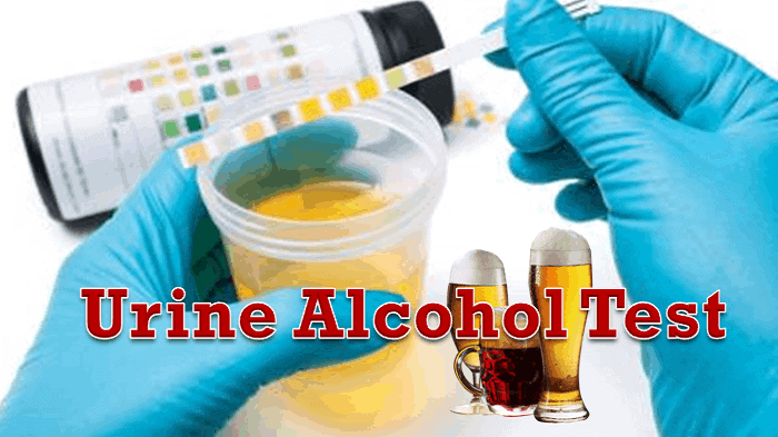 urine alcohol test